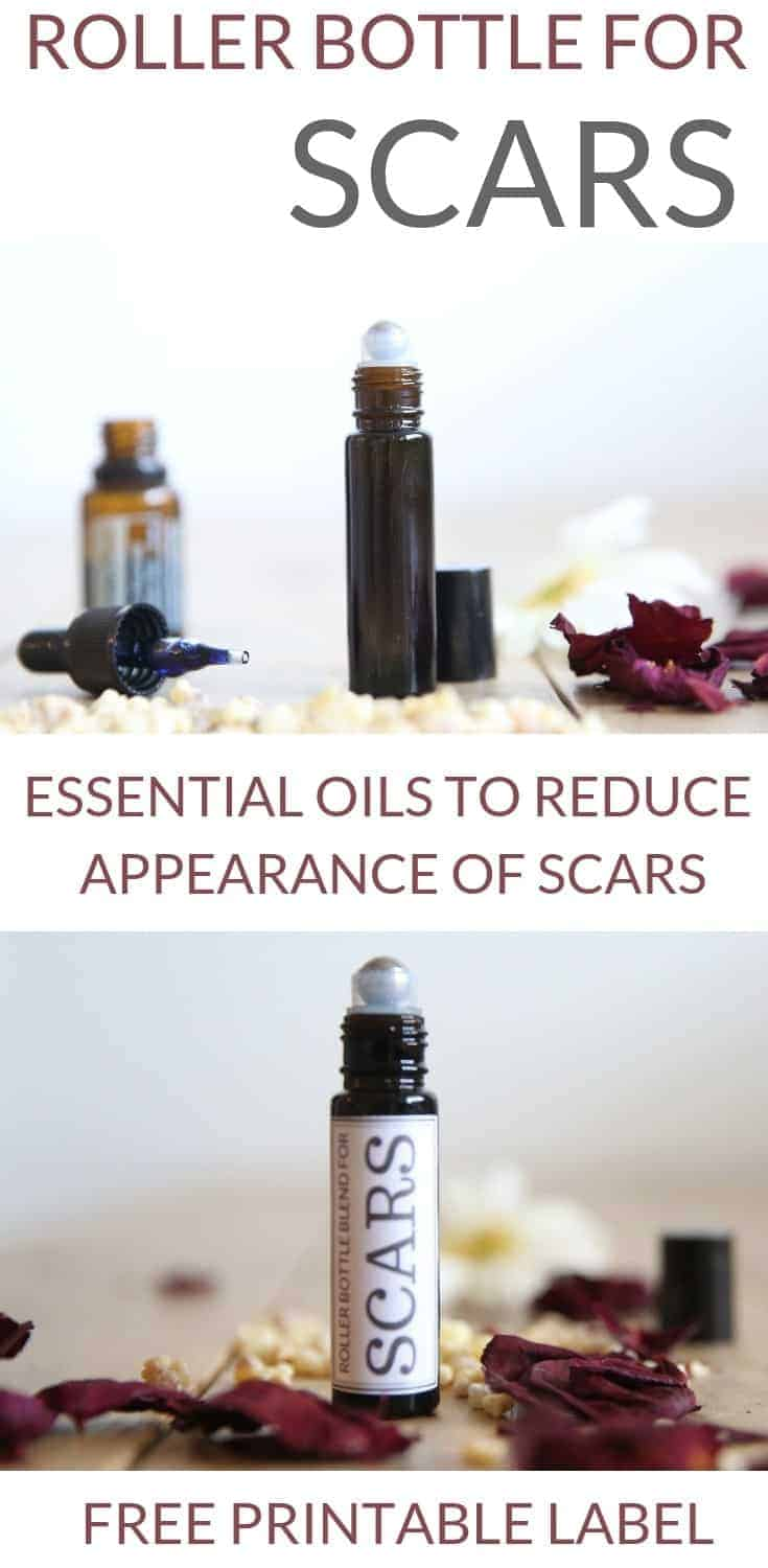 best roller bottle for scars essential oil education health and wellness natural life healthy lifestyle how to make a roller bottle diy recipes natural remedies for home health and body